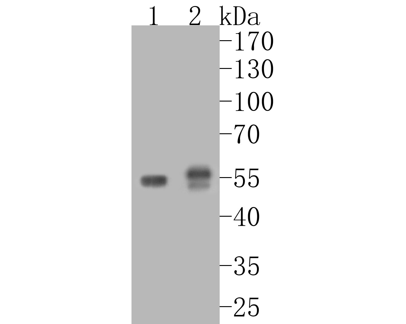 Western blot analysis of PPAR gamma on different lysates. Proteins were transferred to a PVDF membrane and blocked with 5% BSA in PBS for 1 hour at room temperature. The primary antibody (ET1702-57, 1/500) was used in 5% BSA at room temperature for 2 hours. Goat Anti-Rabbit IgG - HRP Secondary Antibody (HA1001) at 1:5,000 dilution was used for 1 hour at room temperature.<br />  Positive control: <br />  Lane 1: PC-12 cell lysate<br />  Lane 2: K562 cell lysate