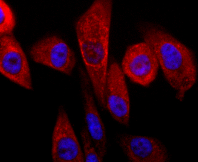 ICC staining of Parkin in PC-3M cells (red). Formalin fixed cells were permeabilized with 0.1% Triton X-100 in TBS for 10 minutes at room temperature and blocked with 1% Blocker BSA for 15 minutes at room temperature. Cells were probed with the primary antibody (ET1702-60, 1/50) for 1 hour at room temperature, washed with PBS. Alexa Fluor®594 Goat anti-Rabbit IgG was used as the secondary antibody at 1/1,000 dilution. The nuclear counter stain is DAPI (blue).