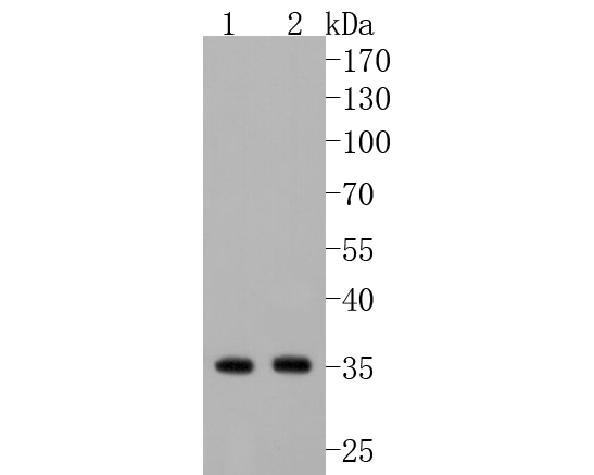 Western blot analysis of Annexin V on different lysates using anti-Annexin V antibody at 1/1,000 dilution.<br /> Positive control: <br /> Lane 1: Hela <br /> Lane 2: HepG2 <br /> Lane 3: JAR