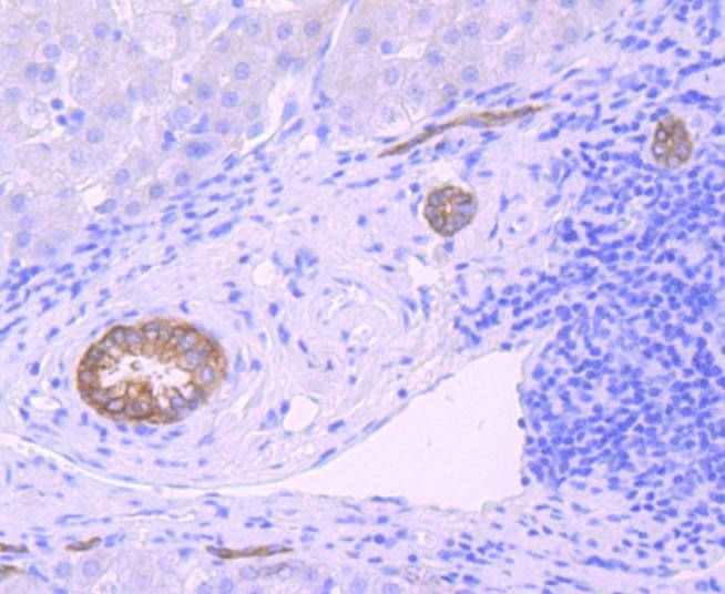 Immunohistochemical analysis of paraffin-embedded human liver cancer tissue using anti-Midkine antibody. Counter stained with hematoxylin.