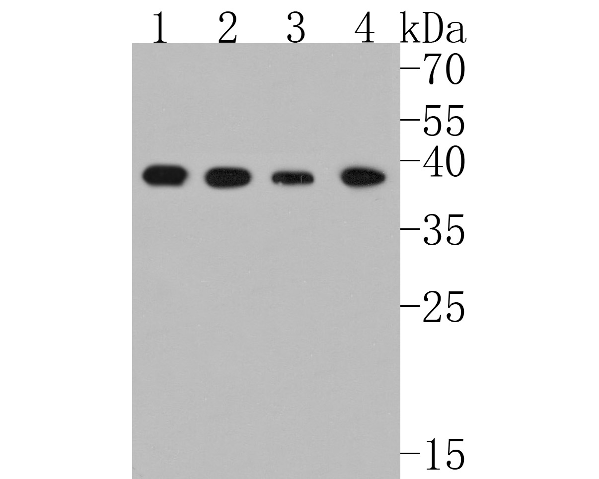 Western blot analysis of p38 on different lysates. Proteins were transferred to a PVDF membrane and blocked with 5% BSA in PBS for 1 hour at room temperature. The primary antibody (ET1702-65, 1/500) was used in 5% BSA at room temperature for 2 hours. Goat Anti-Rabbit IgG - HRP Secondary Antibody (HA1001) at 1:5,000 dilution was used for 1 hour at room temperature.<br /> Positive control: <br /> Lane 1: NIH/3T3 cell lysate<br /> Lane 2: THP-1 cell lysate<br /> Lane 3: SiHa cell lysate<br /> Lane 4: HL-60 cell lysate