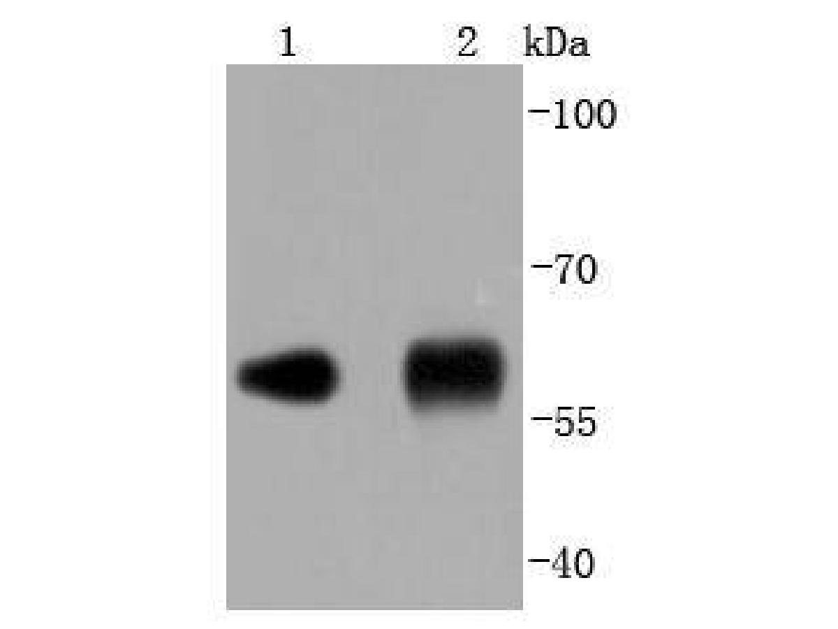 Western blot analysis of PDI on different lysates using anti-PDI antibody at 1/1,000 dilution.<br /> Positive control:   <br /> Lane 1: NIH/3T3      <br /> Lane 2: Human liver