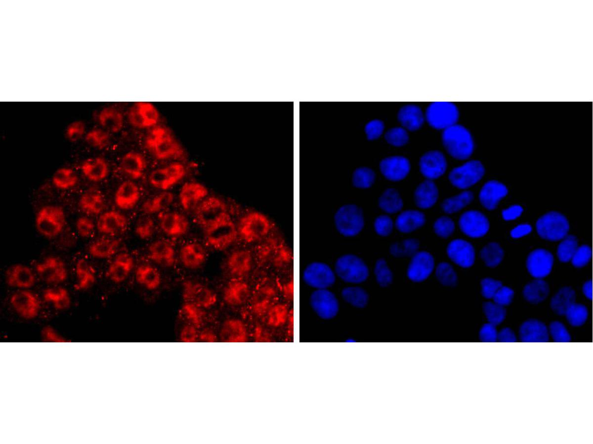 ICC staining KLF4 in 293T cells (red). The nuclear counter stain is DAPI (blue). Cells were fixed in paraformaldehyde, permeabilised with 0.25% Triton X100/PBS.