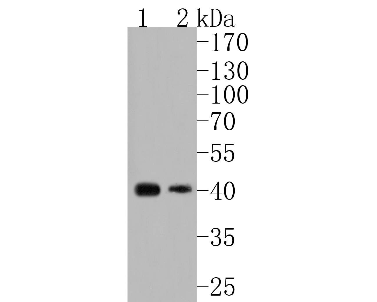 Western blot analysis of PDHA1 on different lysates using anti-PDHA1 antibody at 1/1,000 dilution.<br />  Positive control: <br />  Lane 1: 293T <br />  Lane 2: A431 <br />  Lane 3: Mouse heart
