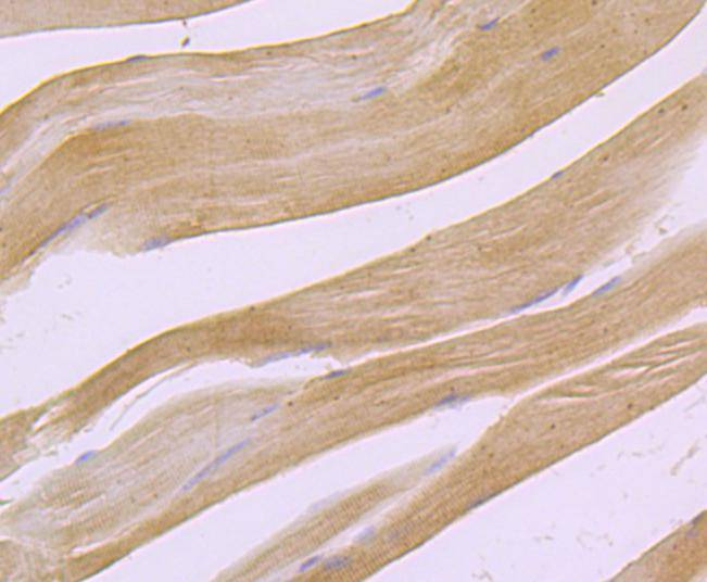 Immunohistochemical analysis of paraffin-embedded human lung cancer tissue using anti-PDHA1 antibody. Counter stained with hematoxylin.