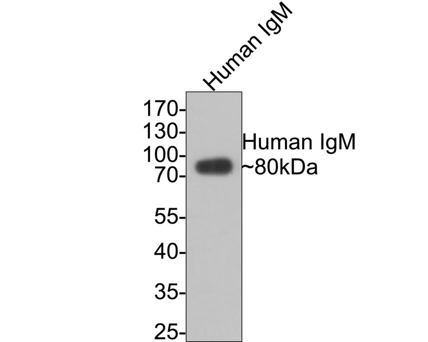 Western blot analysis of Human IgM on human plasma lysates using anti-Human IgM antibody at 1/1,000 dilution.