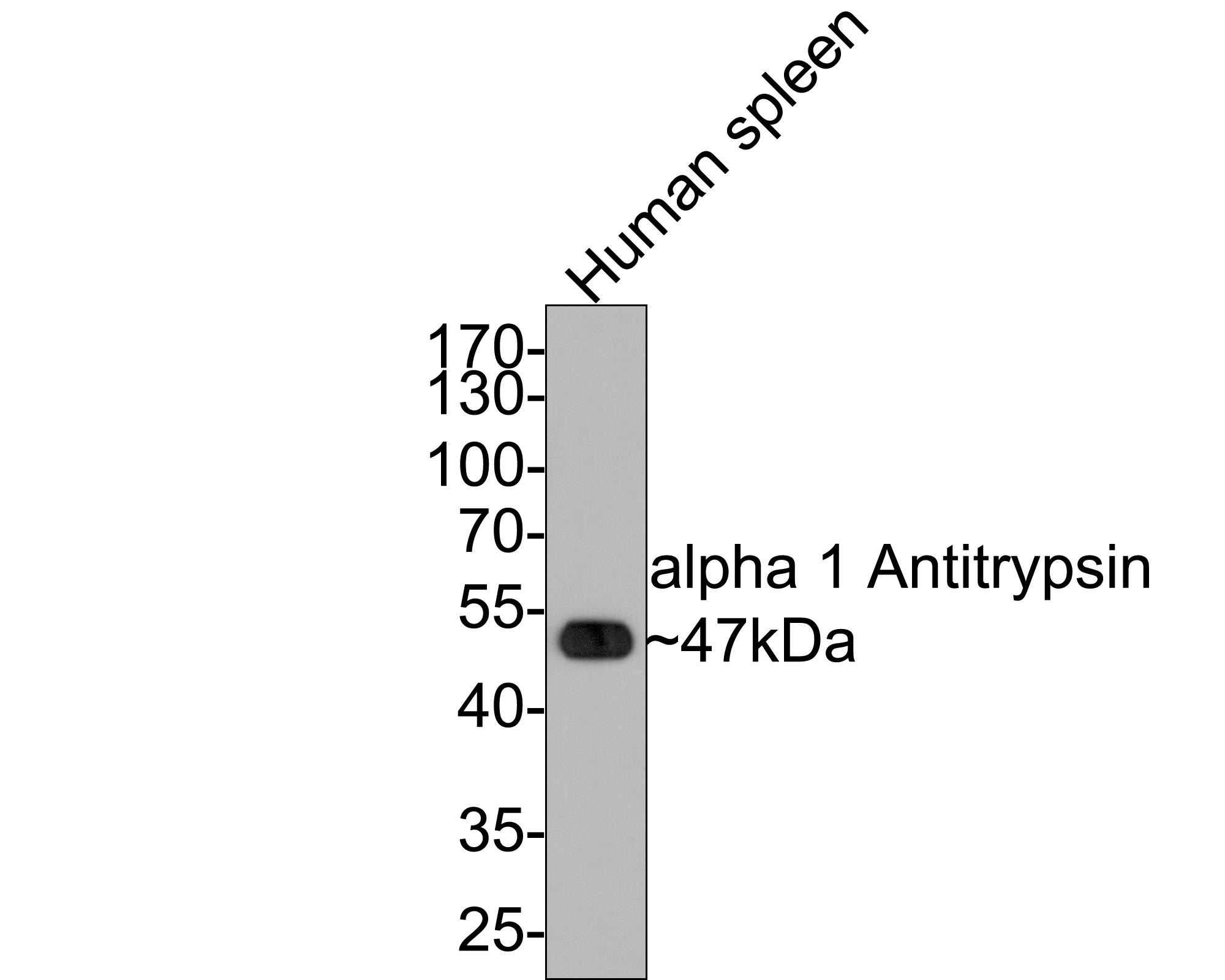 Western blot analysis of alpha 1 Antitrypsin on human spleen lysates using anti-alpha 1 Antitrypsin antibody at 1/1,000 dilution.