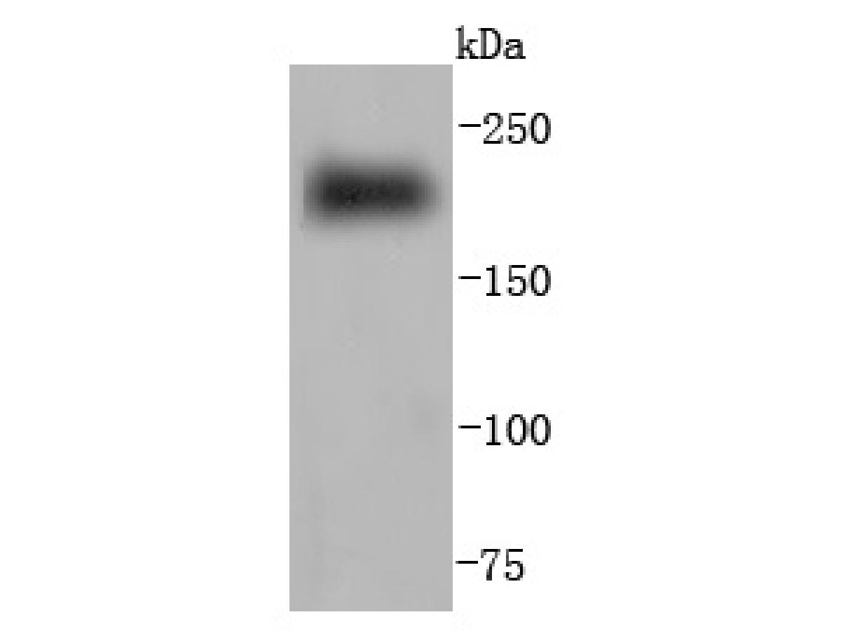 Western blot analysis of Myosin heavy chain on human skeletal muscle lysates. Proteins were transferred to a PVDF membrane and blocked with 5% BSA in PBS for 1 hour at room temperature. The primary antibody was used at a 1:500 dilution in 5% BSA at room temperature for 2 hours. Goat Anti-Rabbit IgG - HRP Secondary Antibody (HA1001) at 1:5,000 dilution was used for 1 hour at room temperature.