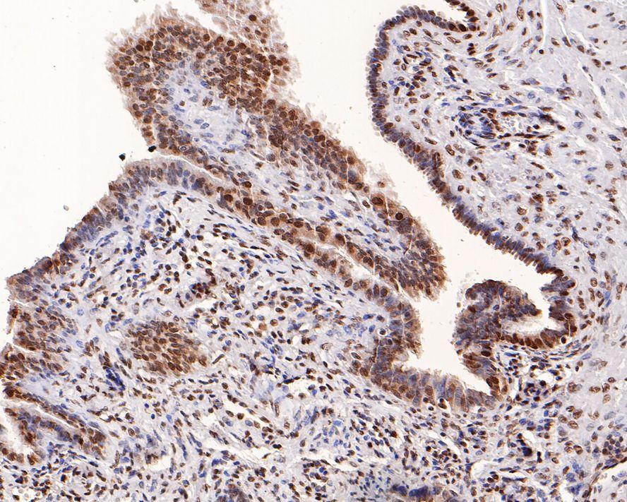 Immunohistochemical analysis of paraffin-embedded human uterus tissue using anti-TRX1 antibody. Counter stained with hematoxylin.