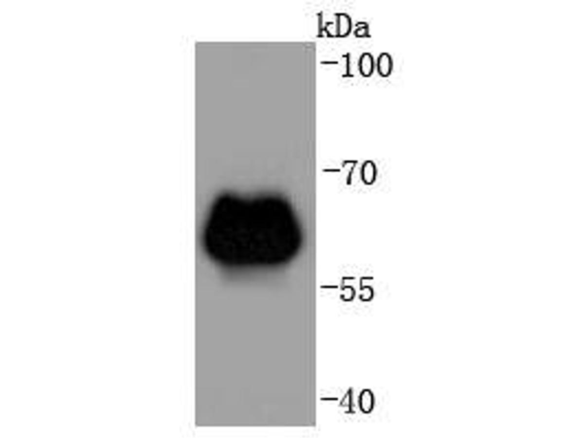 Western blot analysis of beta 2 Adrenergic Receptor on zebrafish tissue lysates. Proteins were transferred to a PVDF membrane and blocked with 5% BSA in PBS for 1 hour at room temperature. The primary antibody (ET1703-04, 1/500) was used in 5% BSA at room temperature for 2 hours. Goat Anti-Rabbit IgG - HRP Secondary Antibody (HA1001) at 1:5,000 dilution was used for 1 hour at room temperature.
