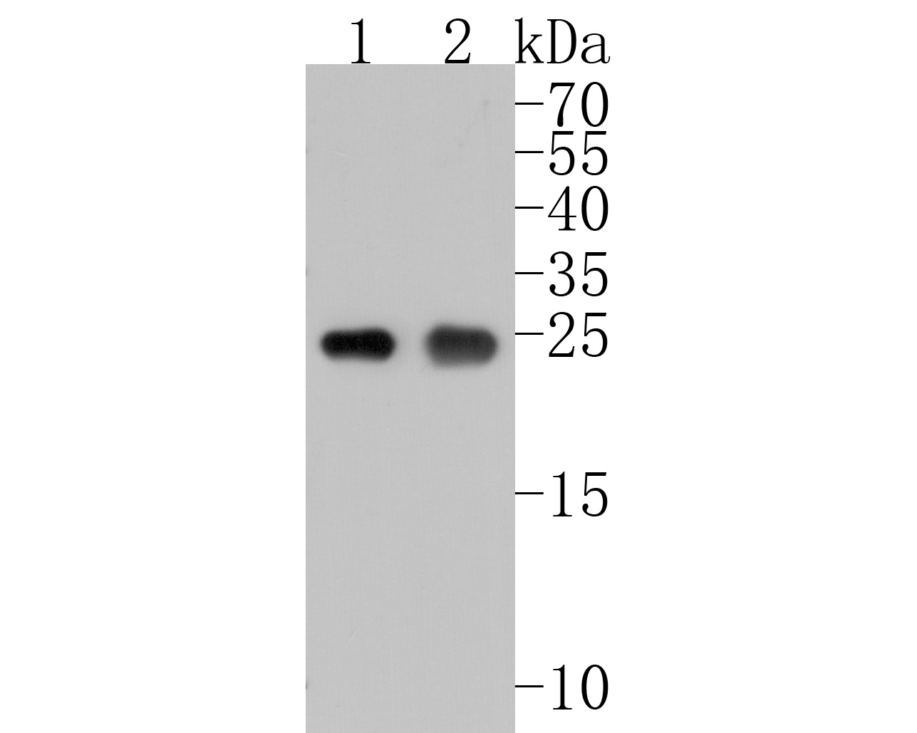 Western blot analysis of PGP9.5 on different lysates. Proteins were transferred to a PVDF membrane and blocked with 5% BSA in PBS for 1 hour at room temperature. The primary antibody (ET1703-22, 1/500) was used in 5% BSA at room temperature for 2 hours. Goat Anti-Rabbit IgG - HRP Secondary Antibody (HA1001) at 1:5,000 dilution was used for 1 hour at room temperature.<br /> Positive control: <br /> Lane 1: A549 cell lysate<br /> Lane 2: 293T cell lysate