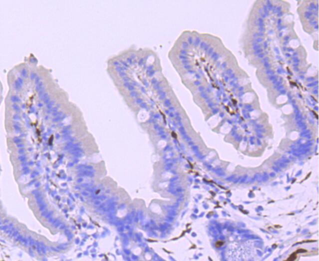 Immunohistochemical analysis of paraffin-embedded mouse colon tissue using anti-PGP9.5 antibody. The section was pre-treated using heat mediated antigen retrieval with Tris-EDTA buffer (pH 8.0-8.4) for 20 minutes.The tissues were blocked in 5% BSA for 30 minutes at room temperature, washed with ddH2O and PBS, and then probed with the primary antibody (ET1703-22, 1/50) for 30 minutes at room temperature. The detection was performed using an HRP conjugated compact polymer system. DAB was used as the chromogen. Tissues were counterstained with hematoxylin and mounted with DPX.
