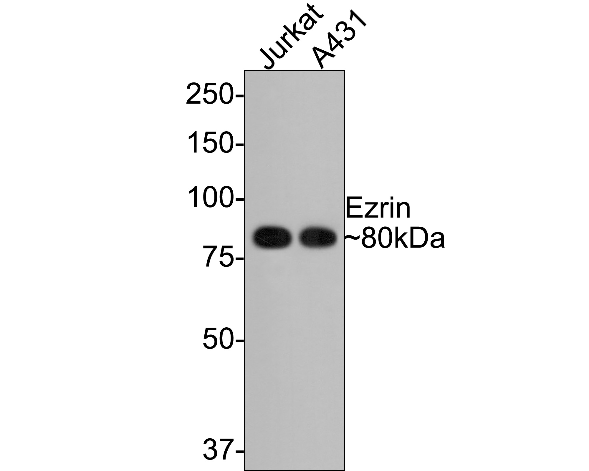 Western blot analysis of Ezrin on different cell lysates using anti-Ezrin antibody at 1/1,000 dilution.<br /> Positive control:<br /> Lane 1: Hela<br /> Lane 2: Jurkat<br /> Lane 3: A431