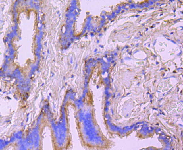 Immunohistochemical analysis of paraffin-embedded human lung tissue using anti-Ezrin antibody. Counter stained with hematoxylin.