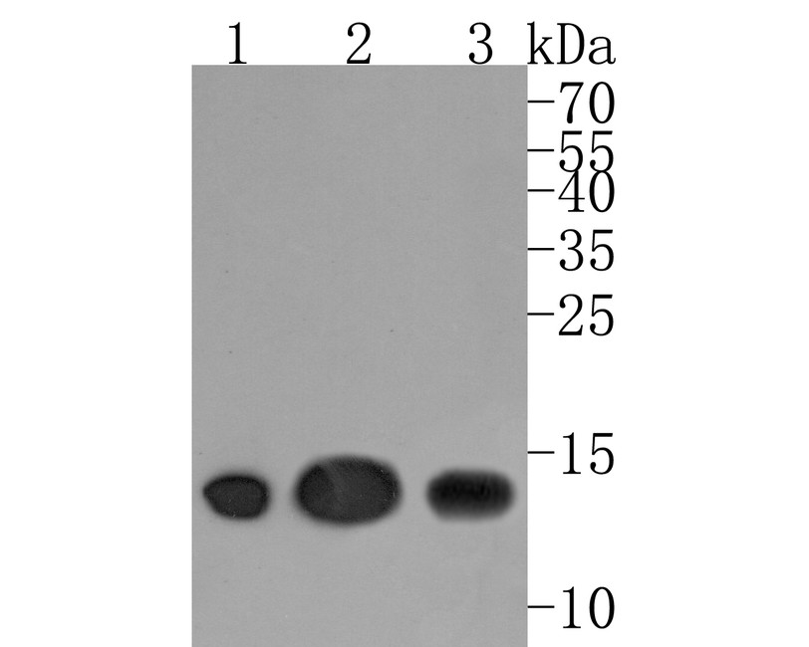 Western blot analysis of CD59 on different cells lysates using anti-CD59 antibody at 1/500 dilution.<br /> Positive control:<br /> Lane 1: Human placenta<br /> Lane 2: HUVEC<br /> Lane 3: K562