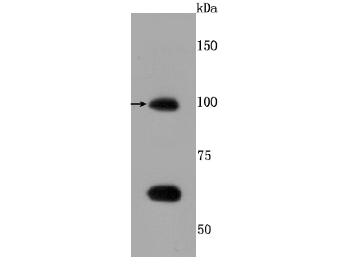 Western blot analysis of TLR5 on Hela cells lysates using anti-TLR5 antibody at 1/500 dilution.