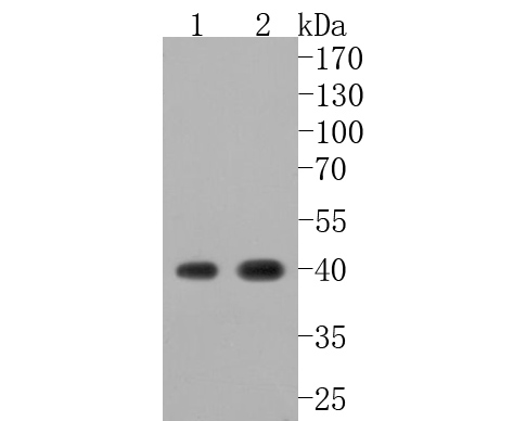 Western blot analysis of Cathepsin L/V/K/H on different lysates. Proteins were transferred to a PVDF membrane and blocked with 5% BSA in PBS for 1 hour at room temperature. The primary antibody (ET1703-44, 1/500) was used in 5% BSA at room temperature for 2 hours. Goat Anti-Rabbit IgG - HRP Secondary Antibody (HA1001) at 1:5,000 dilution was used for 1 hour at room temperature.<br /> Positive control: <br /> Lane 1: HepG2 cell lysate<br /> Lane 2: A549 cell lysate