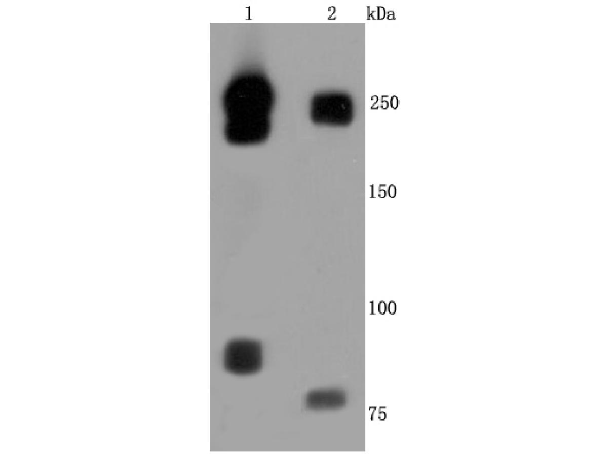 Western blot analysis of L1CAM on different cells lysates using anti-L1CAM antibody at 1/500 dilution.<br /> Positive control: <br /> Line 1: Hela <br /> Line 2: human brain