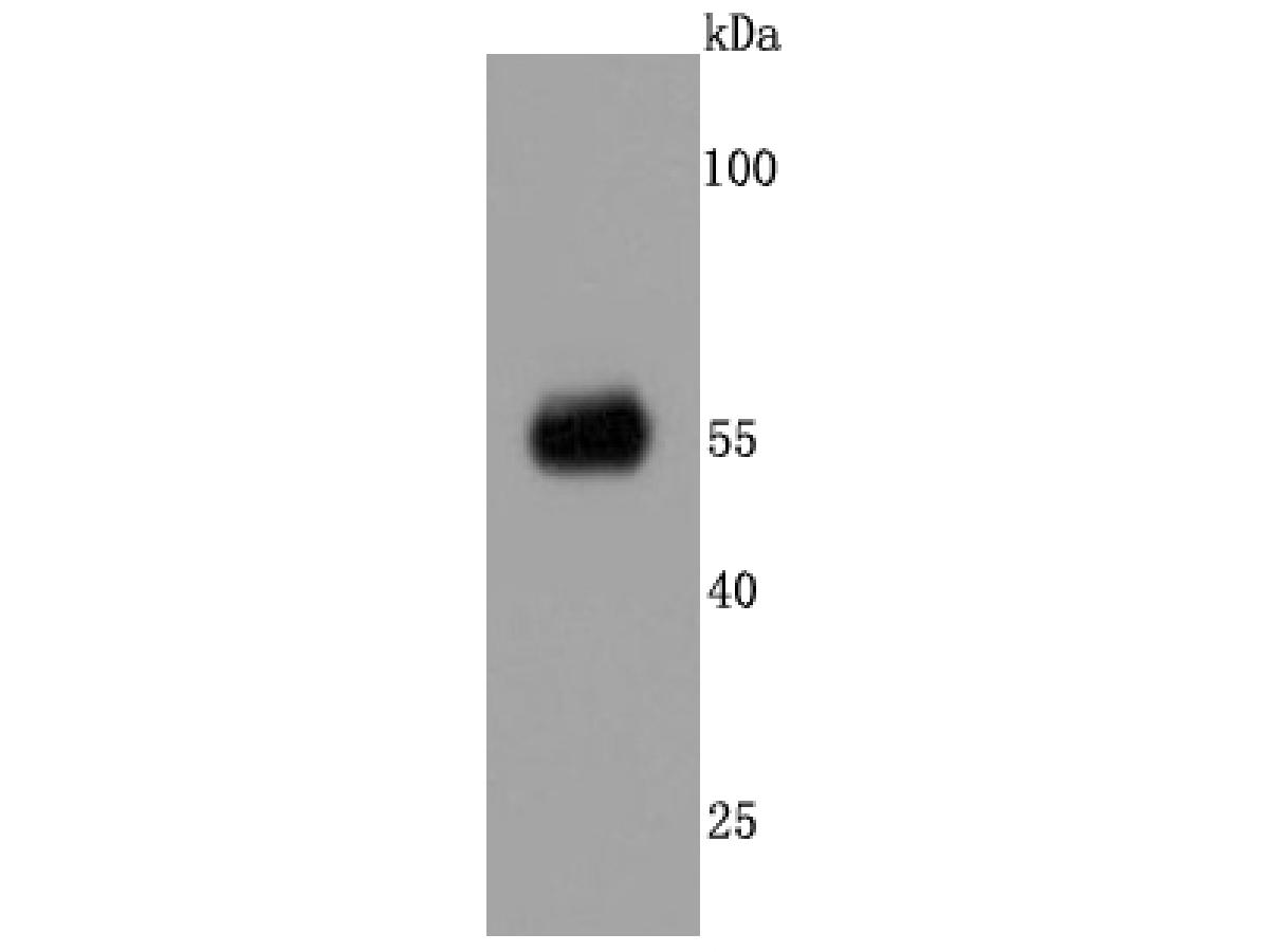Western blot analysis of CaMKII alpha on rat brain tissue lysates. Proteins were transferred to a PVDF membrane and blocked with 5% BSA in PBS for 1 hour at room temperature. The primary antibody (ET1703-54, 1/500) was used in 5% BSA at room temperature for 2 hours. Goat Anti-Rabbit IgG - HRP Secondary Antibody (HA1001) at 1:200,000 dilution was used for 1 hour at room temperature.