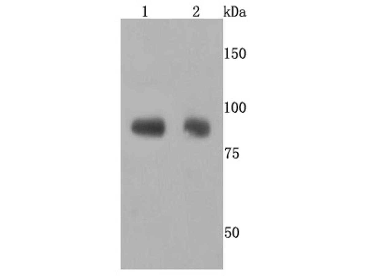 Western blot analysis of ADAM10 on different cells lysates using anti-ADAM10 antibody at 1/500 dilution.<br />  Positive control: <br />  Line 1: Jurkat <br />  Line 2: Hela