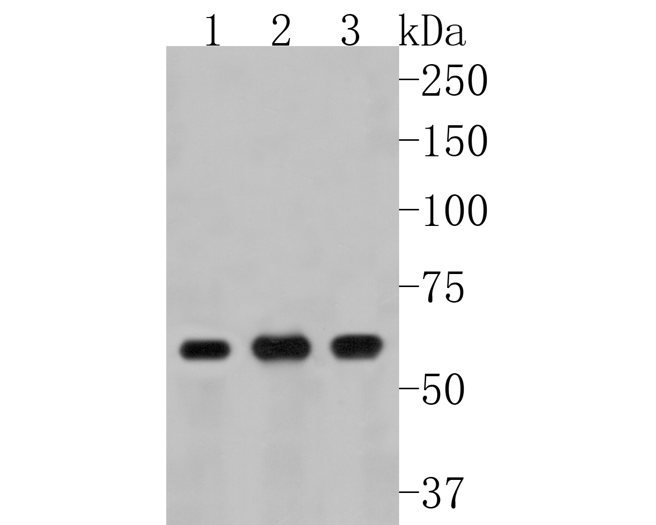 Western blot analysis of TNF Receptor II on different cells lysates using anti-TNF Receptor II antibody at 1/500 dilution.<br /> Positive control: <br />  Line 1: MCF-7 <br />  Line 2: Jurkat