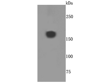 Western blot analysis of A2M on human placenta cells lysates using anti-A2M antibody at 1/500 dilution.