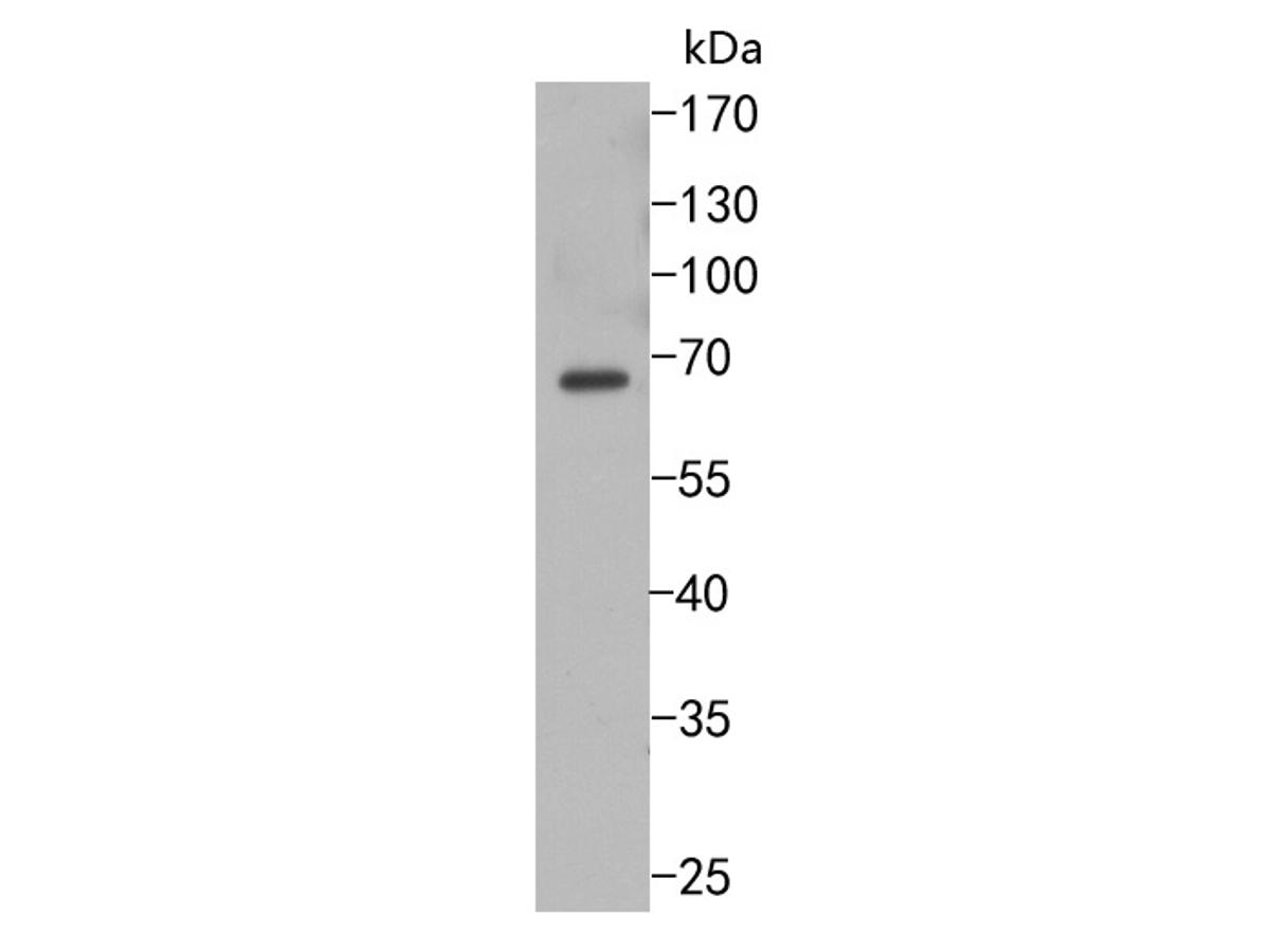 Western blot analysis of GAD67 on SH-SY5Y cells lysates using anti-GAD67 antibody at 1/500 dilution.