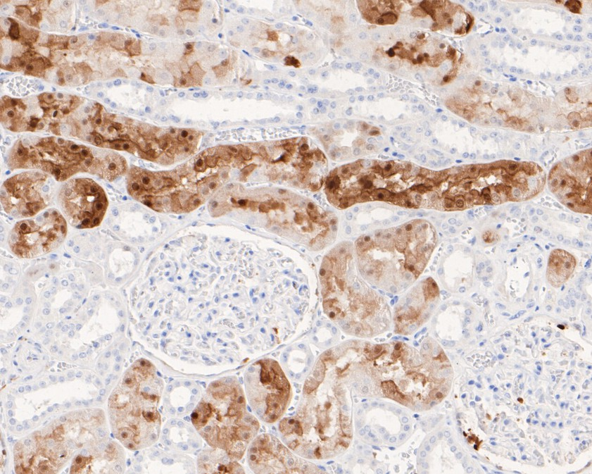 Immunohistochemical analysis of paraffin-embedded mouse brain tissue using anti- S100 antibody. Counter stained with hematoxylin.