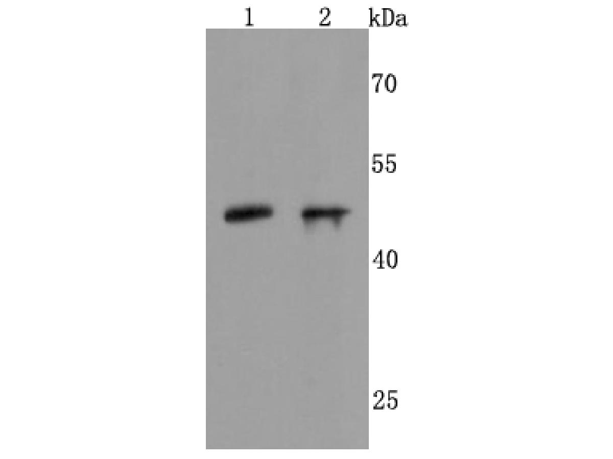 Western blot analysis of NeuroD1 on different cells lysates using anti-NeuroD1 antibody at 1/500 dilution.<br /> Positive control: <br /> Line 1: human brain <br /> Line 2:SH-SY5Y