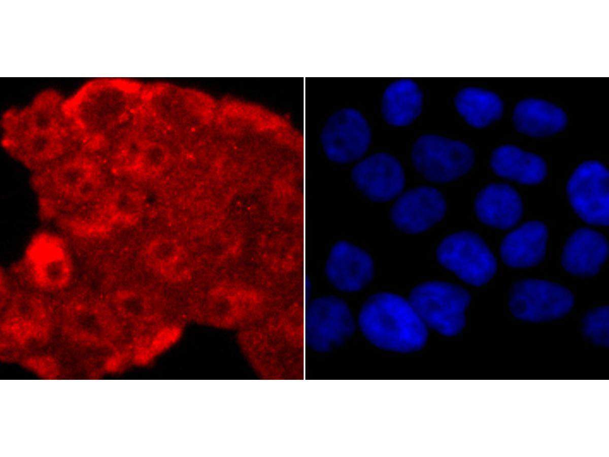 ICC staining of TDP43 in 293T cells (red). Formalin fixed cells were permeabilized with 0.1% Triton X-100 in TBS for 10 minutes at room temperature and blocked with 1% Blocker BSA for 15 minutes at room temperature. Cells were probed with the primary antibody (ET1703-74, 1/50) for 1 hour at room temperature, washed with PBS. Alexa Fluor®594 Goat anti-Rabbit IgG was used as the secondary antibody at 1/1,000 dilution. The nuclear counter stain is DAPI (blue).