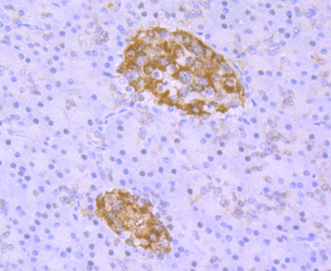 Immunohistochemical analysis of paraffin-embedded human pancreas tissue using anti-TDP43 antibody. The section was pre-treated using heat mediated antigen retrieval with Tris-EDTA buffer (pH 8.0-8.4) for 20 minutes.The tissues were blocked in 5% BSA for 30 minutes at room temperature, washed with ddH2O and PBS, and then probed with the primary antibody (ET1703-74, 1/50) for 30 minutes at room temperature. The detection was performed using an HRP conjugated compact polymer system. DAB was used as the chromogen. Tissues were counterstained with hematoxylin and mounted with DPX.