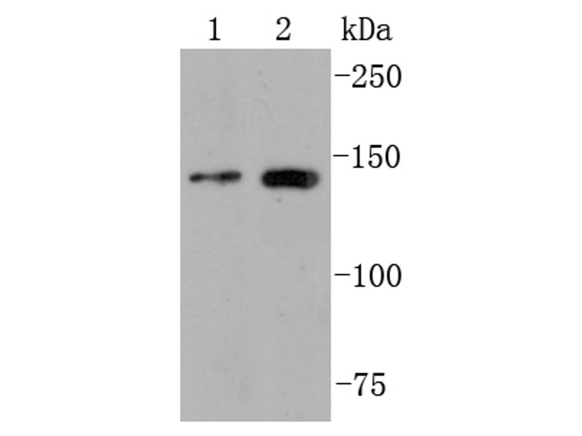 Western blot analysis of FGFR2 on different cell lysates using anti-PGFR2 antibody at 1/1,000 dilution.<br /> Positive control:<br /> Lane 1: MCF-7<br /> Lane 2: Jurkat