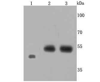 Western blot analysis of Endothelin B Receptor on different cells lysates using anti-Endothelin B Receptor antibody at 1/500 dilution.<br /> Positive control:<br /> Lane 1: Zebrafish<br /> Lane 2: Raji<br /> Line 3: JAR