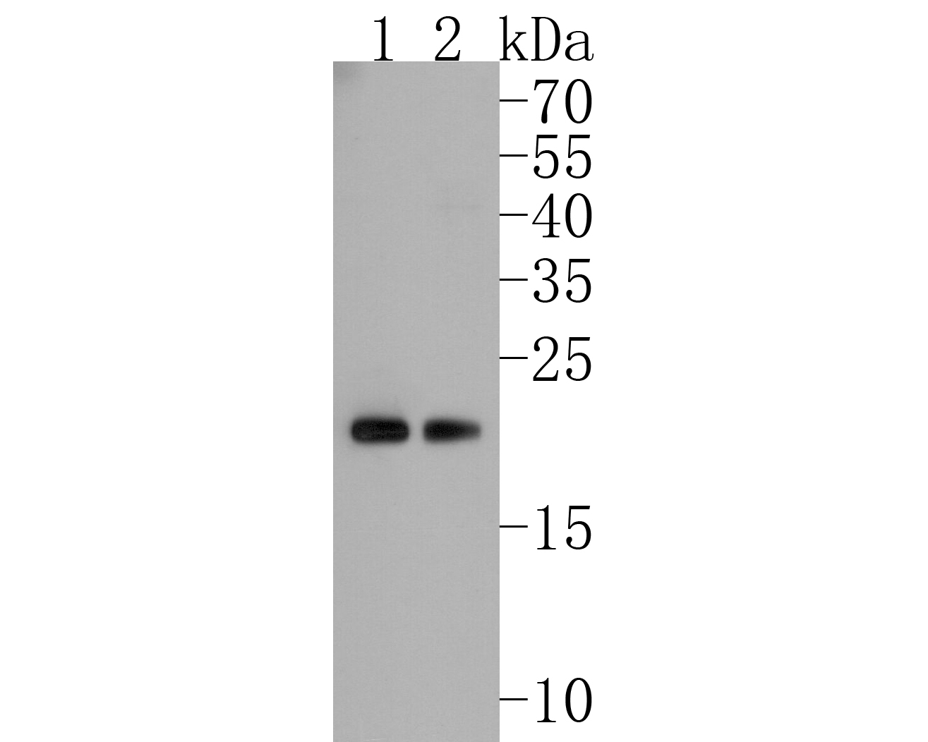Western blot analysis of Rac1-2-3 on different lysates. Proteins were transferred to a PVDF membrane and blocked with 5% BSA in PBS for 1 hour at room temperature. The primary antibody (ET1703-80, 1/500) was used in 5% BSA at room temperature for 2 hours. Goat Anti-Rabbit IgG - HRP Secondary Antibody (HA1001) at 1:5,000 dilution was used for 1 hour at room temperature.<br /> Positive control: <br /> Lane 1: MCF-7 cell lysate<br /> Lane 2: PC-12 cell lysate