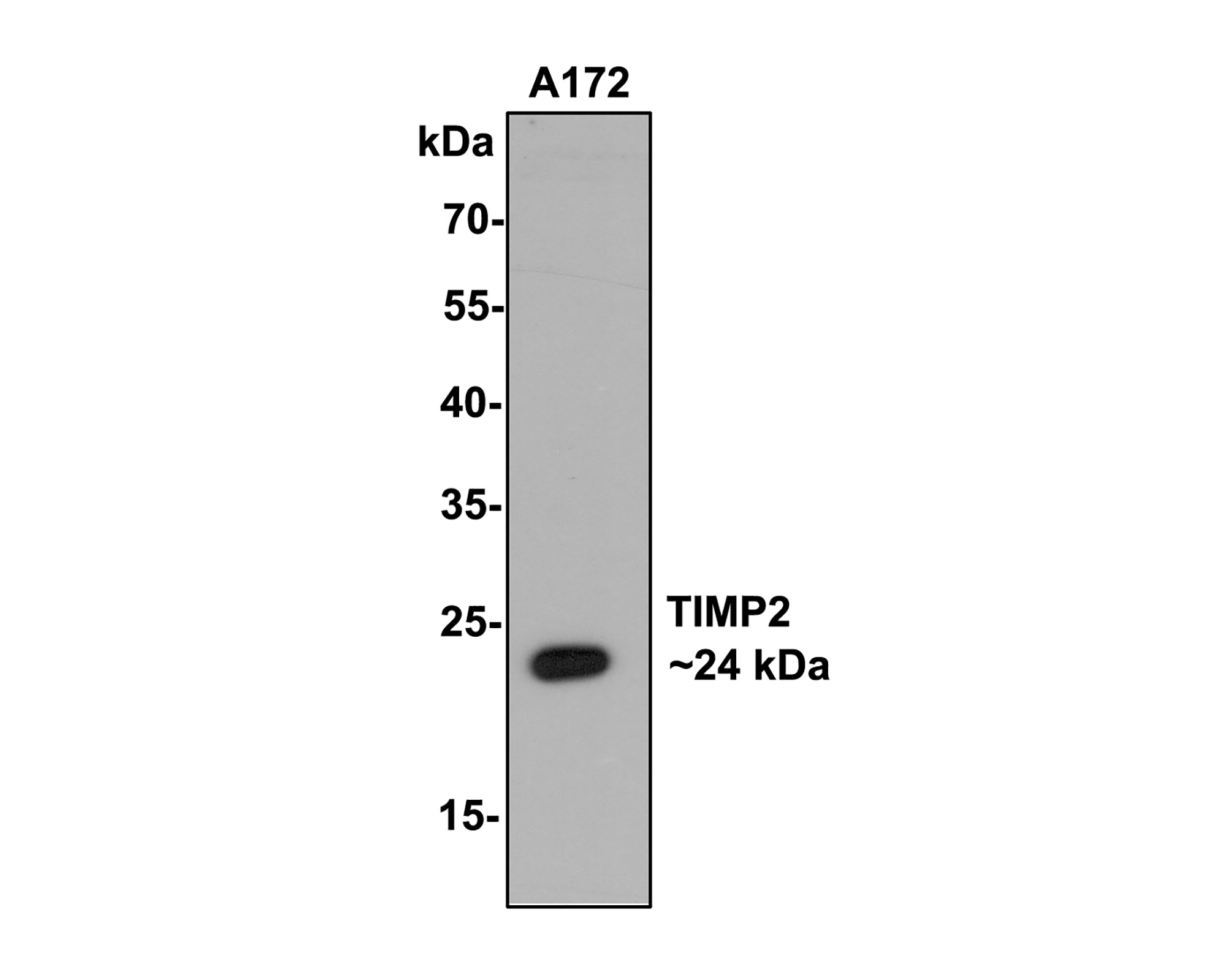 Flow cytometric analysis of Hela cells with TIMP2 antibody at 1/50 dilution (red) compared with an unlabelled control (cells without incubation with primary antibody; black). Alexa Fluor 488-conjugated goat anti rabbit IgG was used as the secondary antibody.