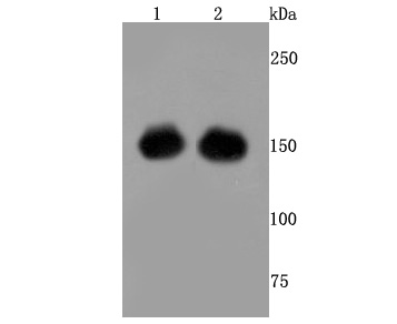 Western blot analysis of CRISPR-Cas9 SP on 293 and 293T cells lysates transfected with CRISPR-Cas9 using anti- CRISPR-Cas9 SP antibody at 1/500 dilution.