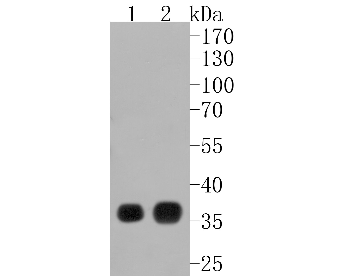 Western blot analysis of delta Sarcoglycan on human lung tissue lysates. Proteins were transferred to a PVDF membrane and blocked with 5% BSA in PBS for 1 hour at room temperature. The primary antibody (ET1703-88, 1/500) was used in 5% BSA at room temperature for 2 hours. Goat Anti-Rabbit IgG - HRP Secondary Antibody (HA1001) at 1:5,000 dilution was used for 1 hour at room temperature.