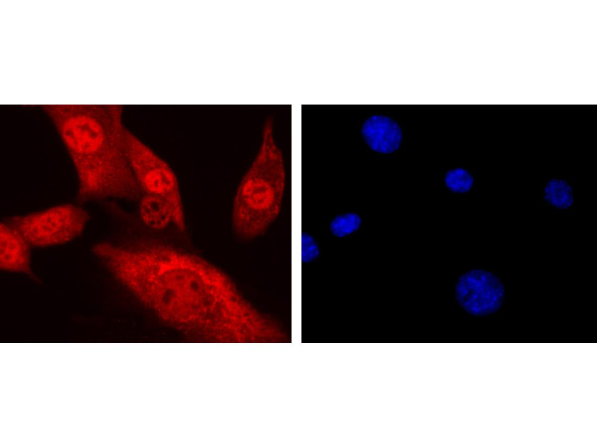 Immunohistochemical analysis of paraffin-embedded human endometrium tissue using anti-CTCF antibody. Counter stained with hematoxylin.