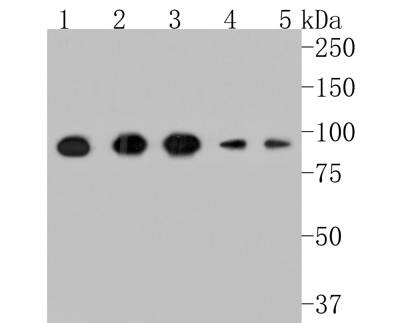 Western blot analysis of CD26 on mouse heart cells lysates using anti-CD26 antibody at 1/500 dilution.