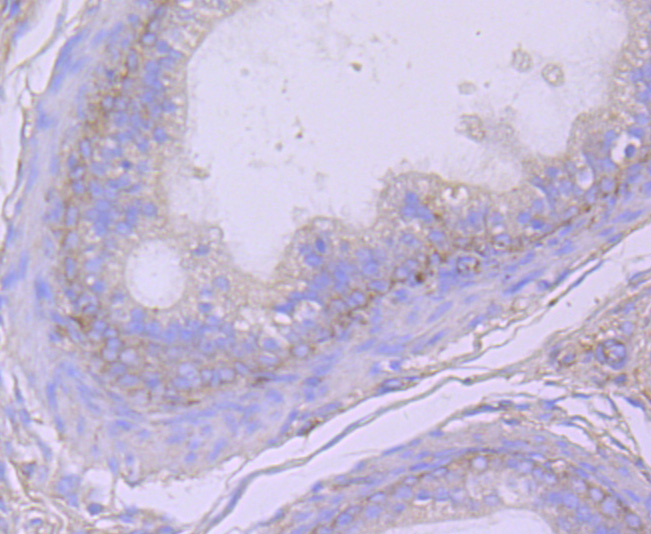 Flow cytometric analysis of CD26 was done on Hela cells. The cells were fixed, permeabilized and stained with the primary antibody (ET1703-93, 1/50) (red). After incubation of the primary antibody at room temperature for an hour, the cells were stained with a Alexa Fluor 488-conjugated Goat anti-Rabbit IgG Secondary antibody at 1/1000 dilution for 30 minutes.Unlabelled sample was used as a control (cells without incubation with primary antibody; black).