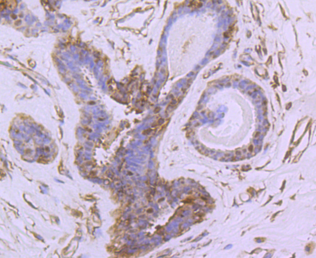 Immunohistochemical analysis of paraffin-embedded human breast tissue using anti-NUR77 antibody. The section was pre-treated using heat mediated antigen retrieval with Tris-EDTA buffer (pH 8.0-8.4) for 20 minutes.The tissues were blocked in 5% BSA for 30 minutes at room temperature, washed with ddH2O and PBS, and then probed with the primary antibody (ET1703-97, 1/50) for 30 minutes at room temperature. The detection was performed using an HRP conjugated compact polymer system. DAB was used as the chromogen. Tissues were counterstained with hematoxylin and mounted with DPX.