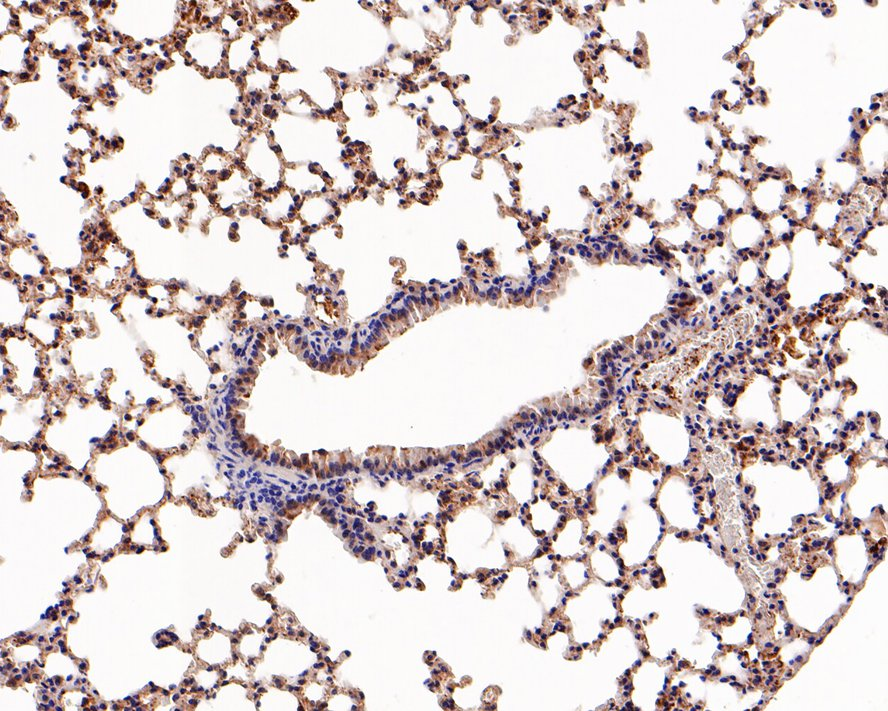 Immunohistochemical analysis of paraffin-embedded mouse lung tissue using anti-FABP4 antibody. The section was pre-treated using heat mediated antigen retrieval with Tris-EDTA buffer (pH 8.0-8.4) for 20 minutes.The tissues were blocked in 5% BSA for 30 minutes at room temperature, washed with ddH2O and PBS, and then probed with the primary antibody (ET1703-98, 1/50) for 30 minutes at room temperature. The detection was performed using an HRP conjugated compact polymer system. DAB was used as the chromogen. Tissues were counterstained with hematoxylin and mounted with DPX.