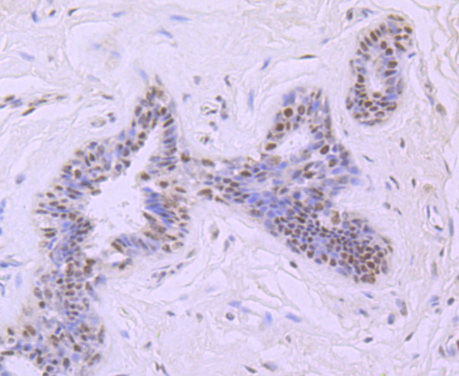 Immunohistochemical analysis of paraffin-embedded human breast cancer tissue using anti- Mre11 antibody. Counter stained with hematoxylin.