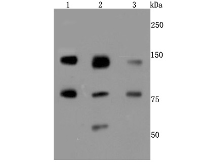 Western blot analysis of XRCC1 on different cells lysates using anti-XRCC1 antibody at 1/500 dilution.<br />  Positive control: <br />   Line 1: Hela <br />   Line 2: 293T <br />   Line 3: Jarkat