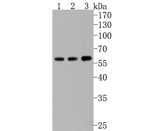 Western blot analysis of Calcineurin A on different cells lysates using anti-Calcineurin A antibody at 1/500 dilution.<br /> Positive control: <br />  Lane 1: Hlea <br />  Lane 2: 293 <br />  Lane 3: A431