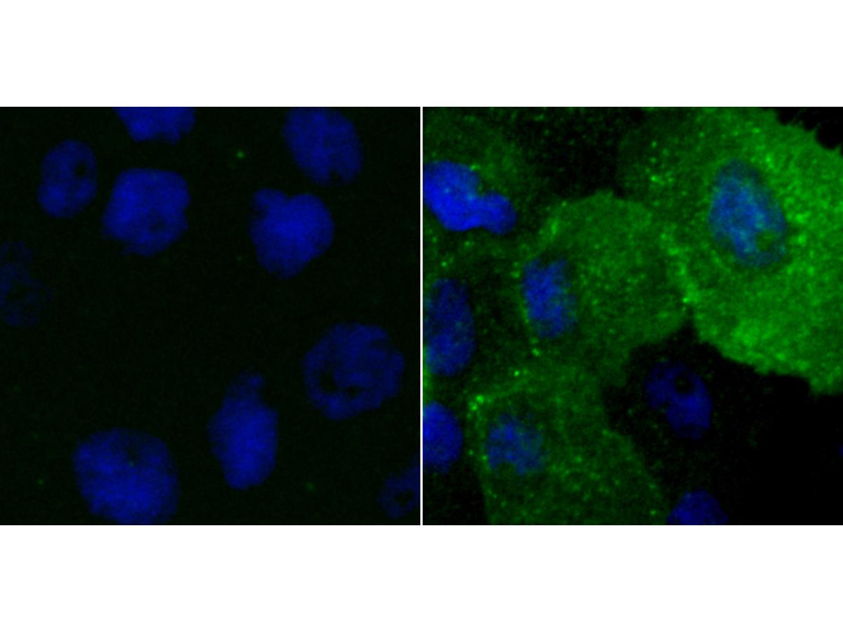 ICC staining Phosphotyrosine in A431 cells (green) nontreated (Left) or treated with Sodium metavanadate (Right). The nuclear counter stain is DAPI (blue). Cells were fixed in paraformaldehyde, permeabilised with 0.25% Triton X100/PBS.