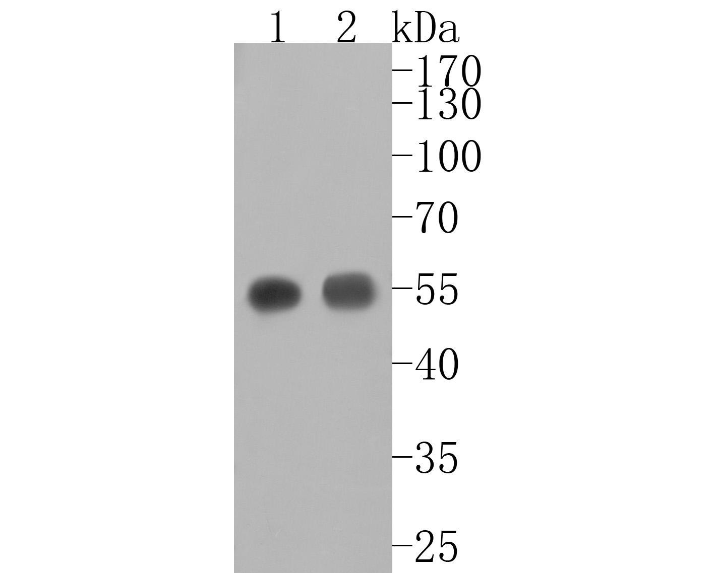 Western blot analysis of alpha sarcoglycan on rat heart cells lysates using anti-alpha sarcoglycan antibody at 1/500 dilution.