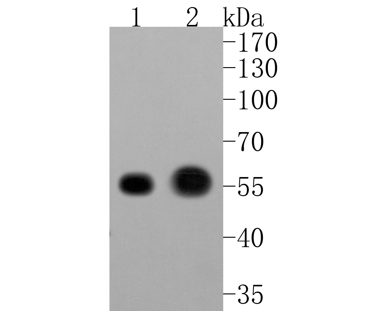 Western blot analysis of CaMKII delta on Human skeletal muscle (1) and Rat heart (2) cells lysates using anti-CaMKII delta antibody at 1/500 dilution.