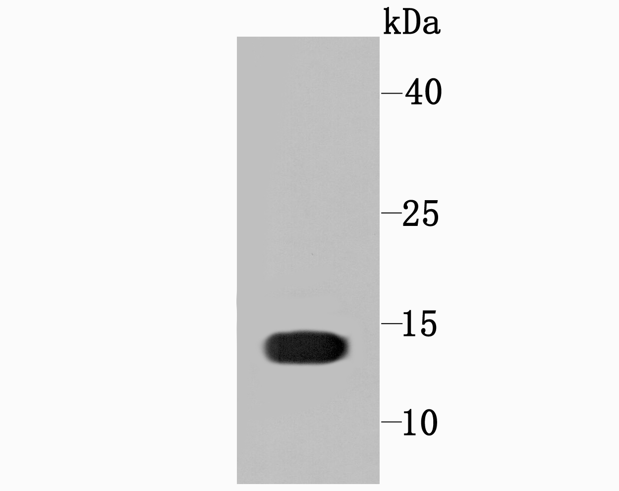 Western blot analysis of Profilin 1 on Hela cell using anti-Profilin 1 antibody at 1/1,000 dilution.