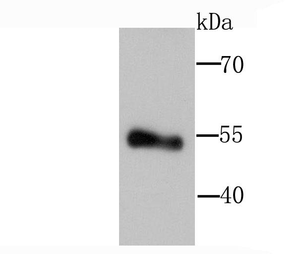 Western blot analysis of Lipoprotein lipase on human placenta tissue lysate using anti-Lipoprotein lipase antibody at 1/1,000 dilution.